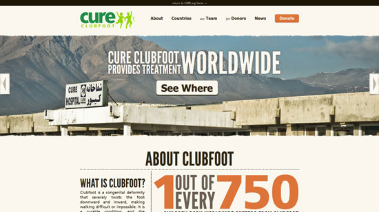 cure_org_clubfoot