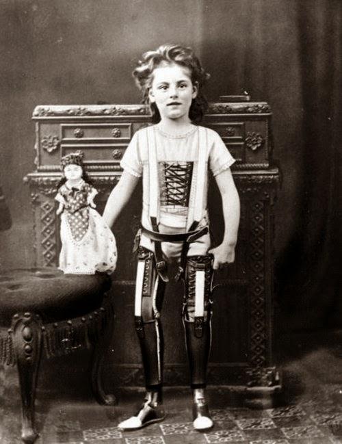 Garota com Prótese em 1900