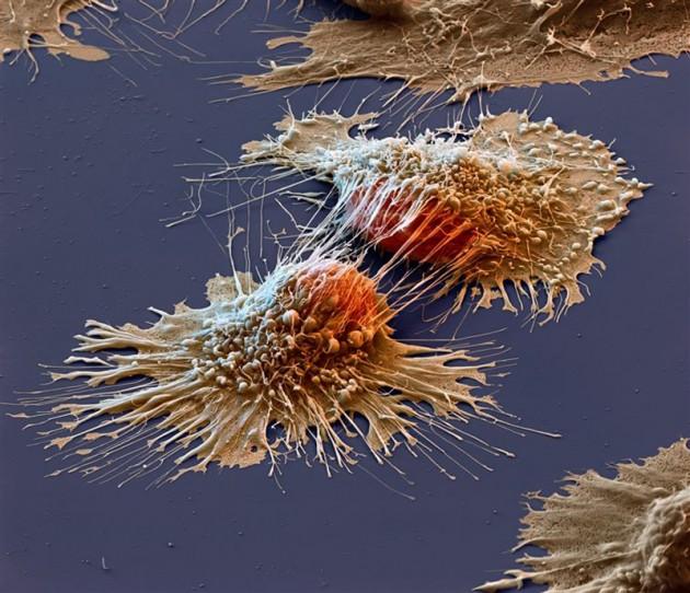#17 - Células com cânce vista de um telescópio
