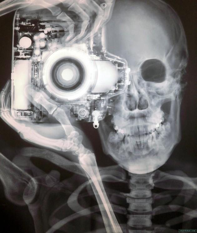 #11 - Fotografo em Raio-X