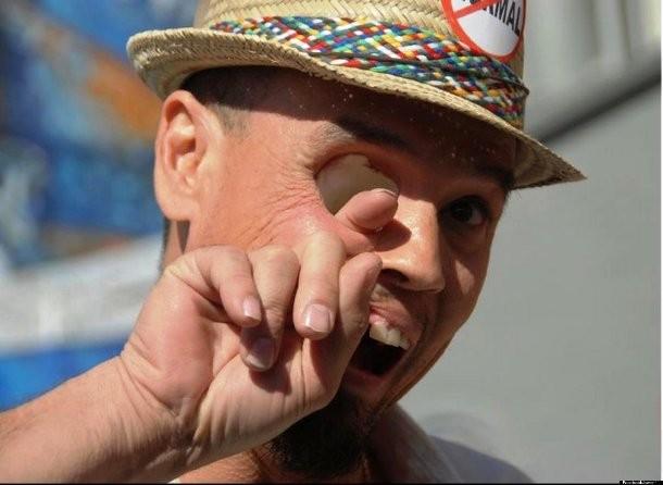 Um tipo raro de câncer chamado Carcinoma, afetou a cavidade nasal e ocular desse homem. Ele supera isso levando sempre no bom humor :)