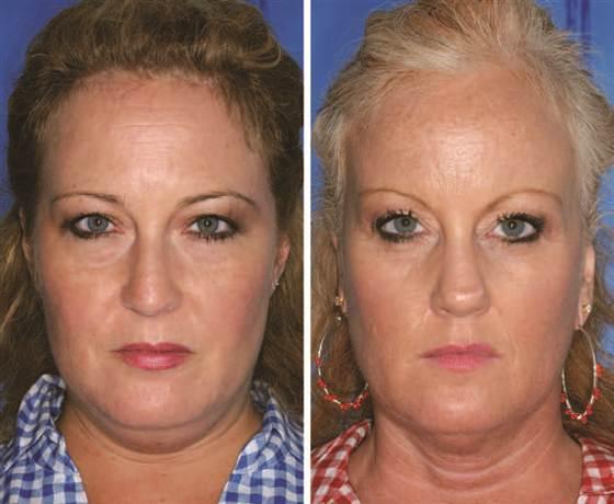 A irmã da direita fuma a 6 anos.