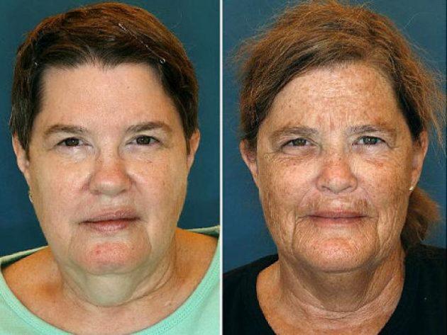A da direita fumou 16 anos a mais que sua irmã.