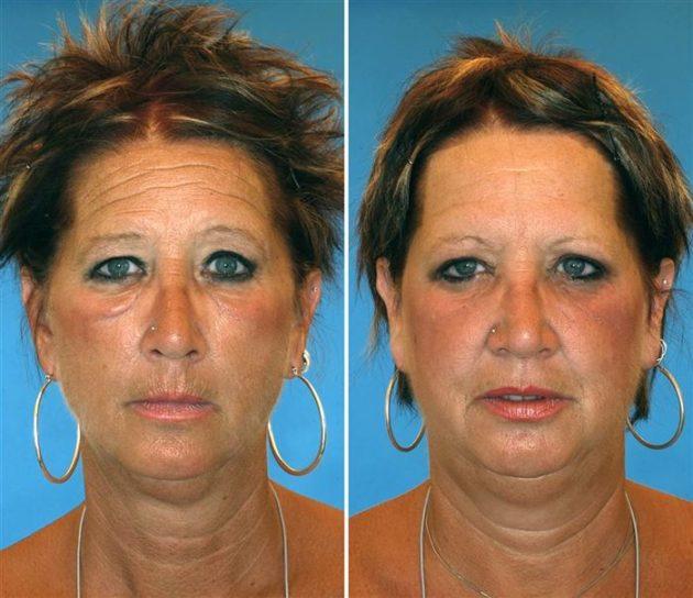 As duas tem 52 anos, porém a da esquerda fumou durante 17 anos.
