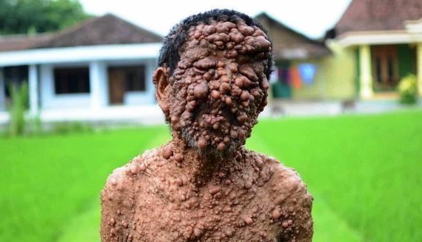 Esse homem na Indonesia que tem seu corpo coberto por verrugas