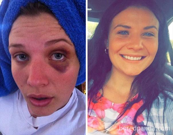 106 Dias limpas de heroína.