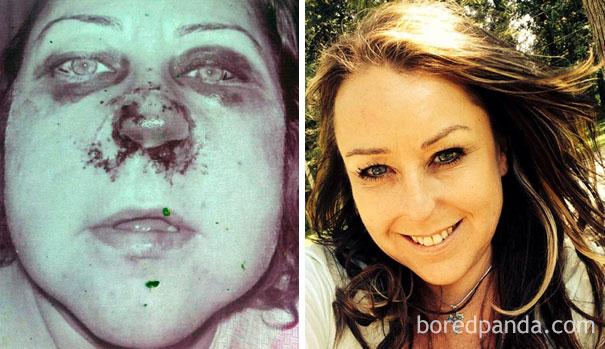 4 Anos e 4 meses sem heroína e cocaina.