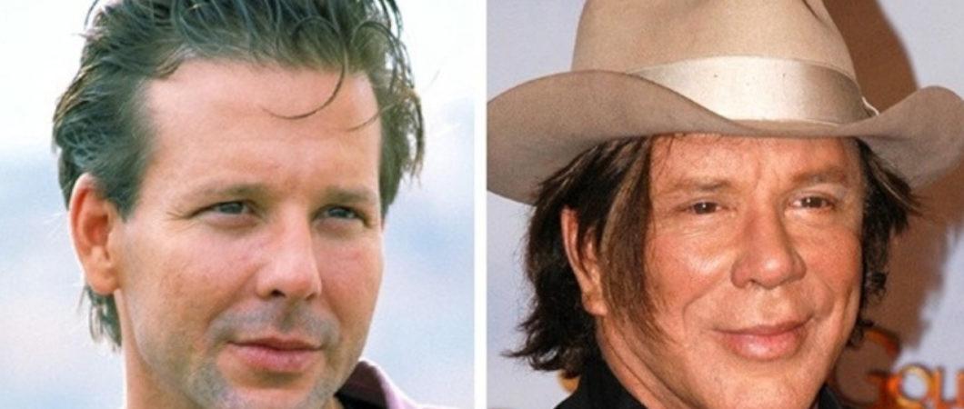 Veja o antes e depois dessas 13 celebridades que passaram por cirurgias plásticas