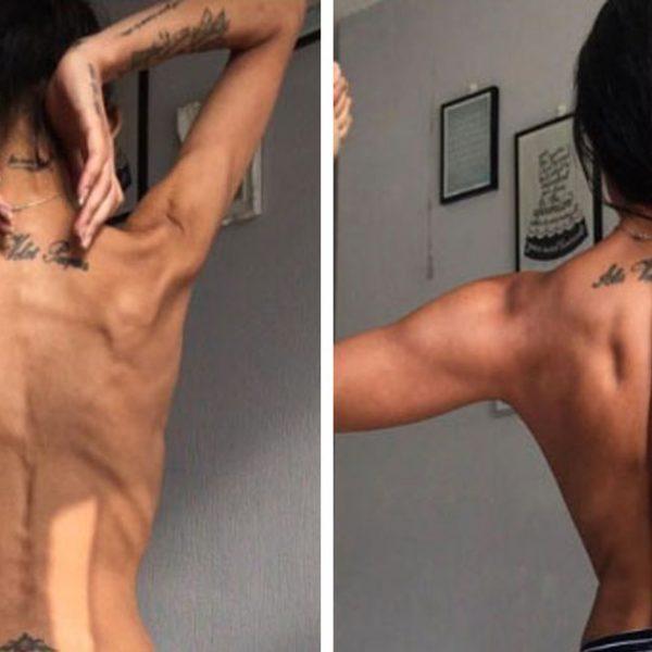 anorexia capa