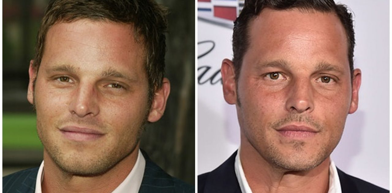 antes e depois Greys Anatomy 05