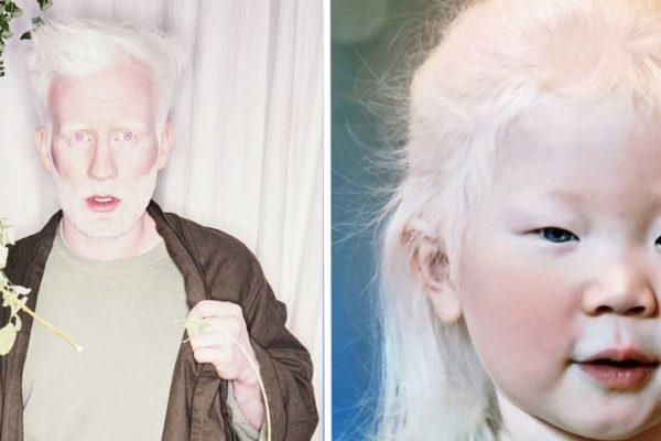 beleza albina capa