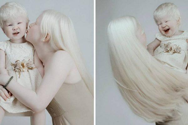 irmãs albinas capa