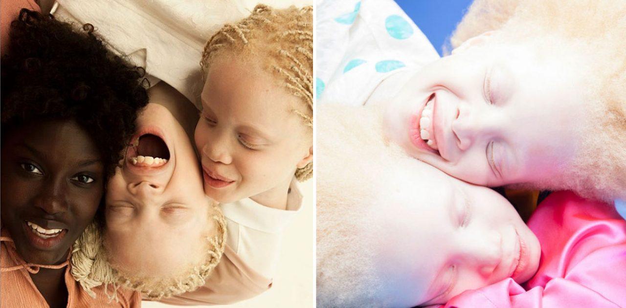 irmas-albino