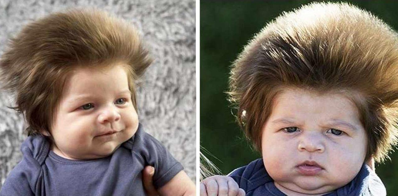 menino cabeludo capa