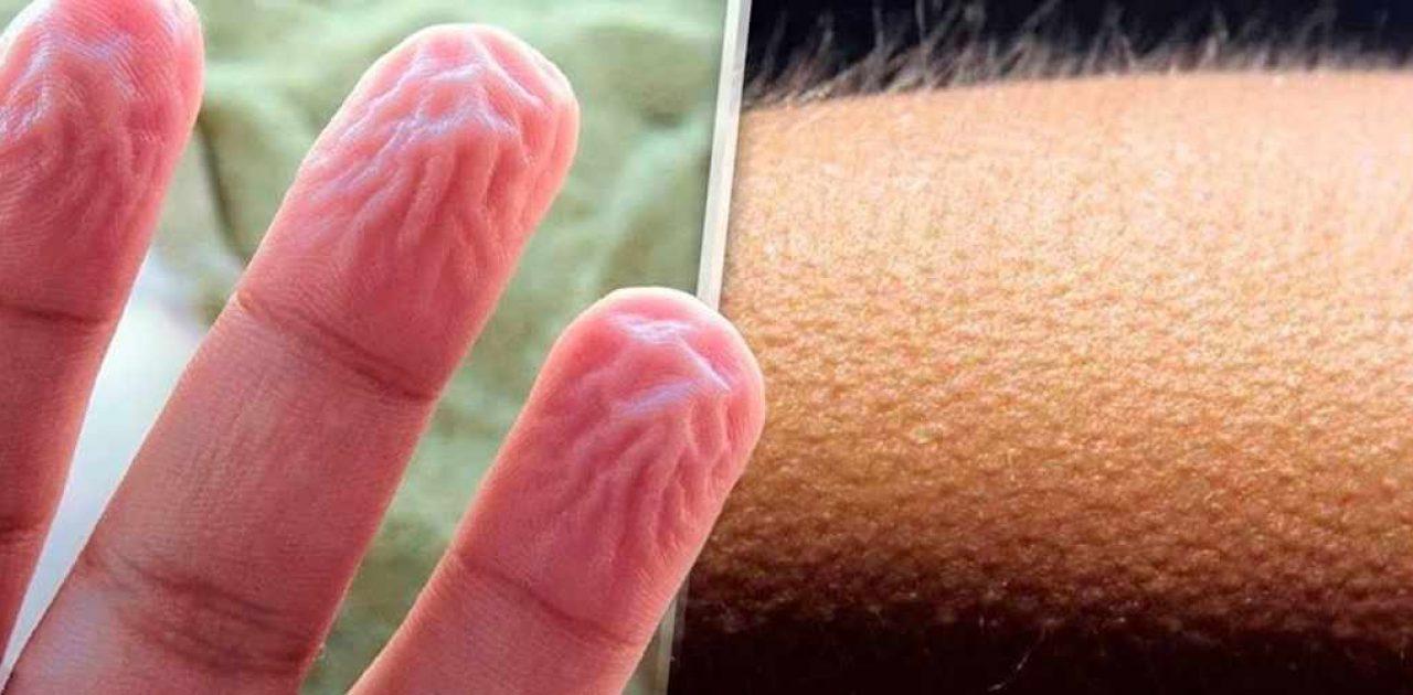 reação do corpo capa