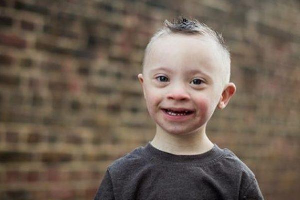 sorriso síndrome de down capa