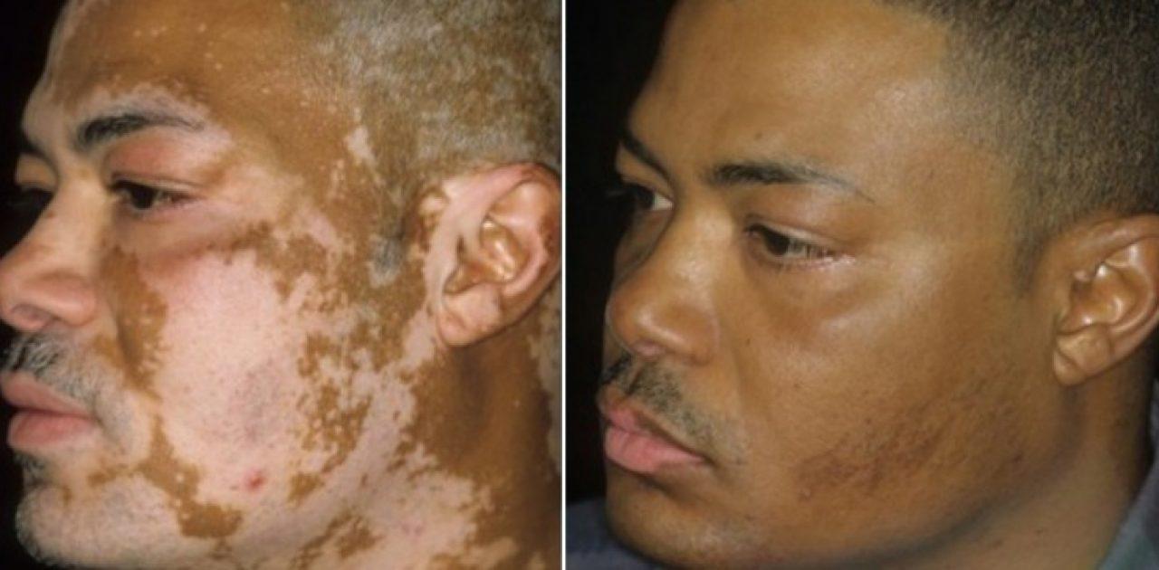 vitiligo capa
